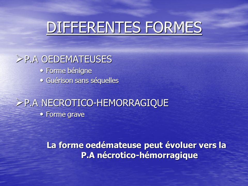 La forme oedémateuse peut évoluer vers la P.A nécrotico-hémorragique