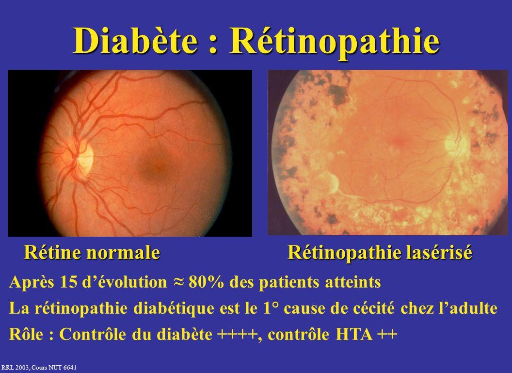 Diabète : Rétinopathie