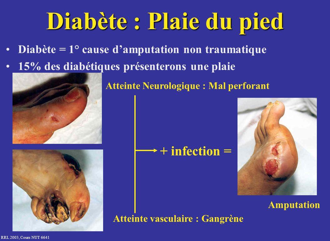 Diabète : Plaie du pied + infection =
