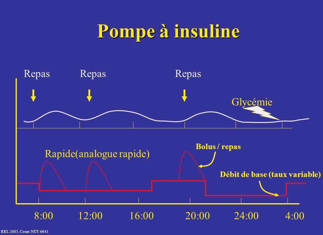 Pompe à insuline Repas Repas Repas Glycémie Rapide(analogue rapide)