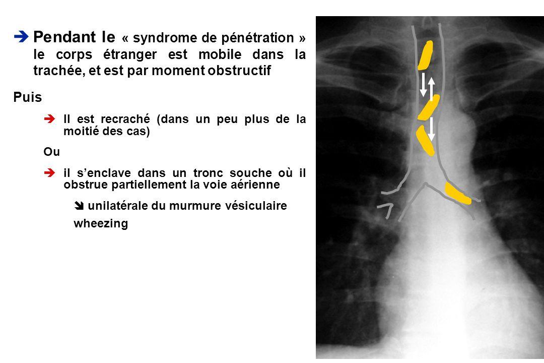 Pendant le « syndrome de pénétration » le corps étranger est mobile dans la trachée, et est par moment obstructif