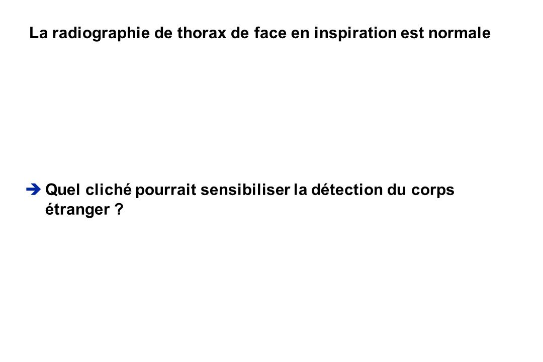 La radiographie de thorax de face en inspiration est normale
