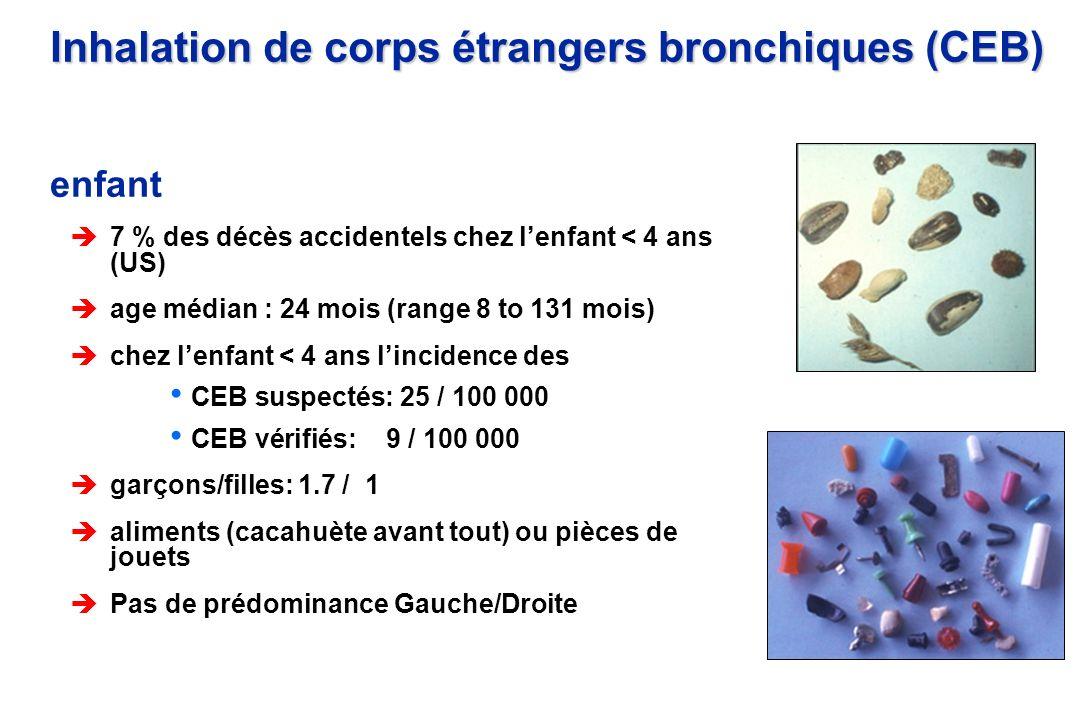 Inhalation de corps étrangers bronchiques (CEB)