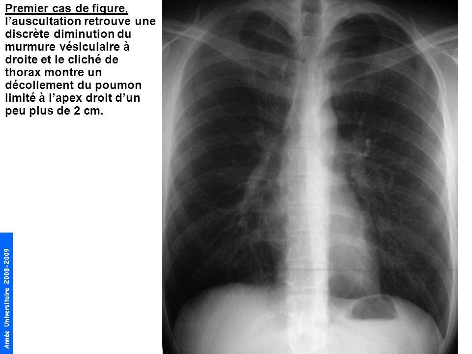 Premier cas de figure, l'auscultation retrouve une discrète diminution du murmure vésiculaire à droite et le cliché de thorax montre un décollement du poumon limité à l'apex droit d'un peu plus de 2 cm.