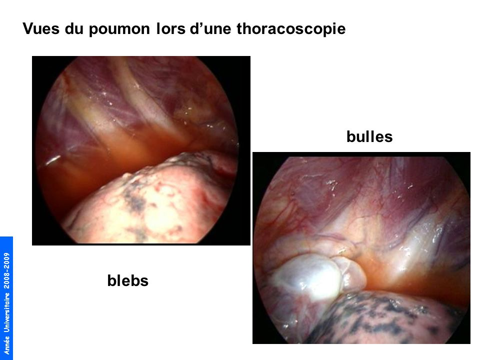 Vues du poumon lors d'une thoracoscopie