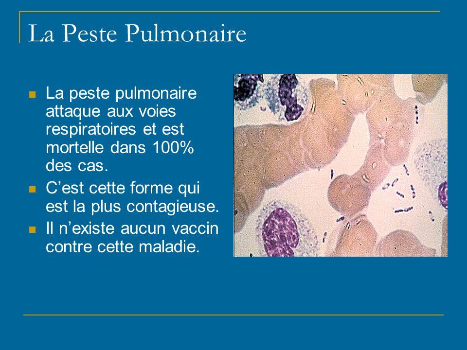 La Peste Pulmonaire La peste pulmonaire attaque aux voies respiratoires et est mortelle dans 100% des cas.