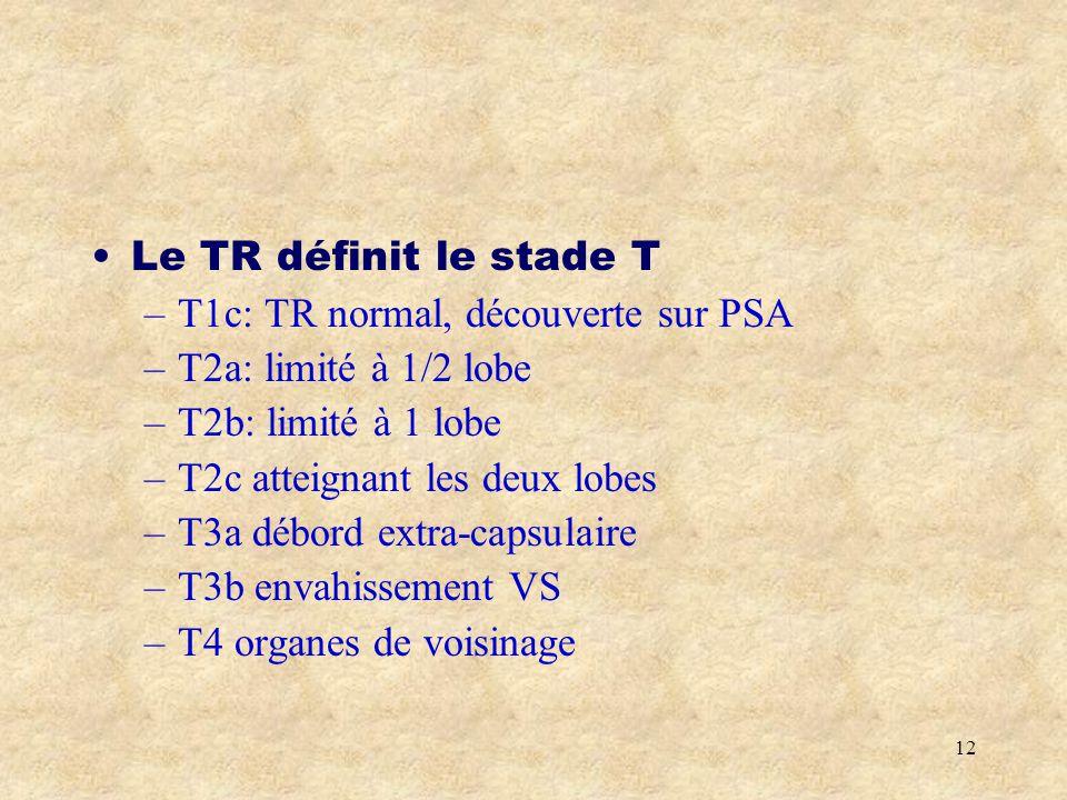 Le TR définit le stade T T1c: TR normal, découverte sur PSA. T2a: limité à 1/2 lobe. T2b: limité à 1 lobe.