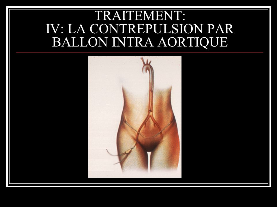 TRAITEMENT: IV: LA CONTREPULSION PAR BALLON INTRA AORTIQUE