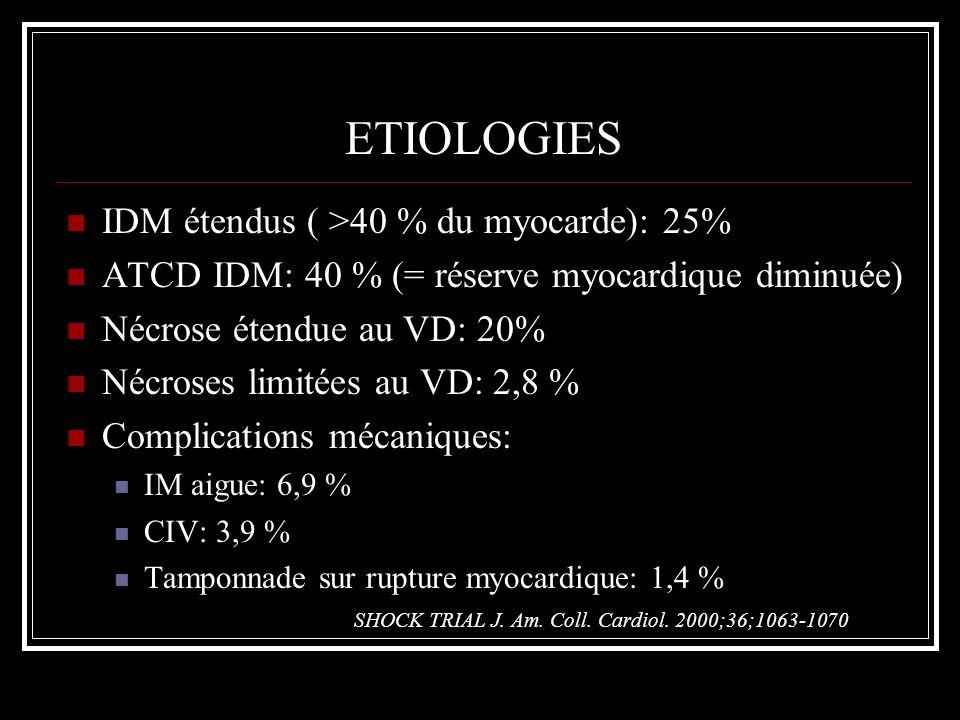ETIOLOGIES IDM étendus ( >40 % du myocarde): 25%