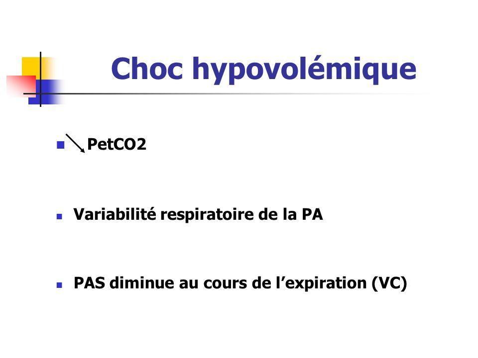 Choc hypovolémique PetCO2 Variabilité respiratoire de la PA