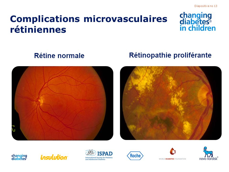 Complications microvasculaires rétiniennes