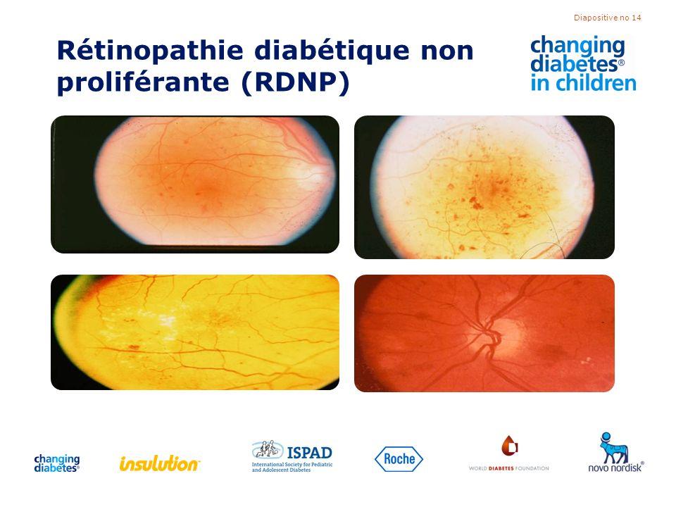 Rétinopathie diabétique non proliférante (RDNP)