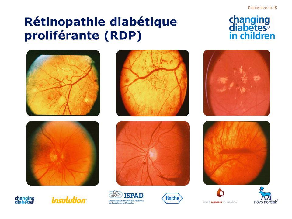 Rétinopathie diabétique proliférante (RDP)