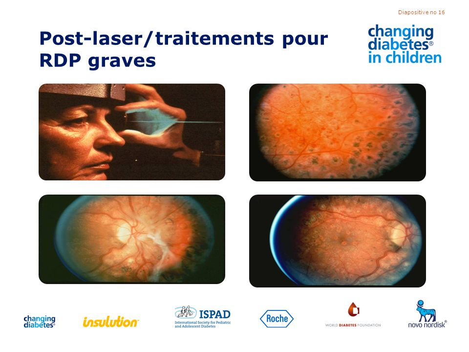 Post-laser/traitements pour RDP graves