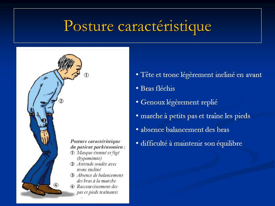 Posture caractéristique