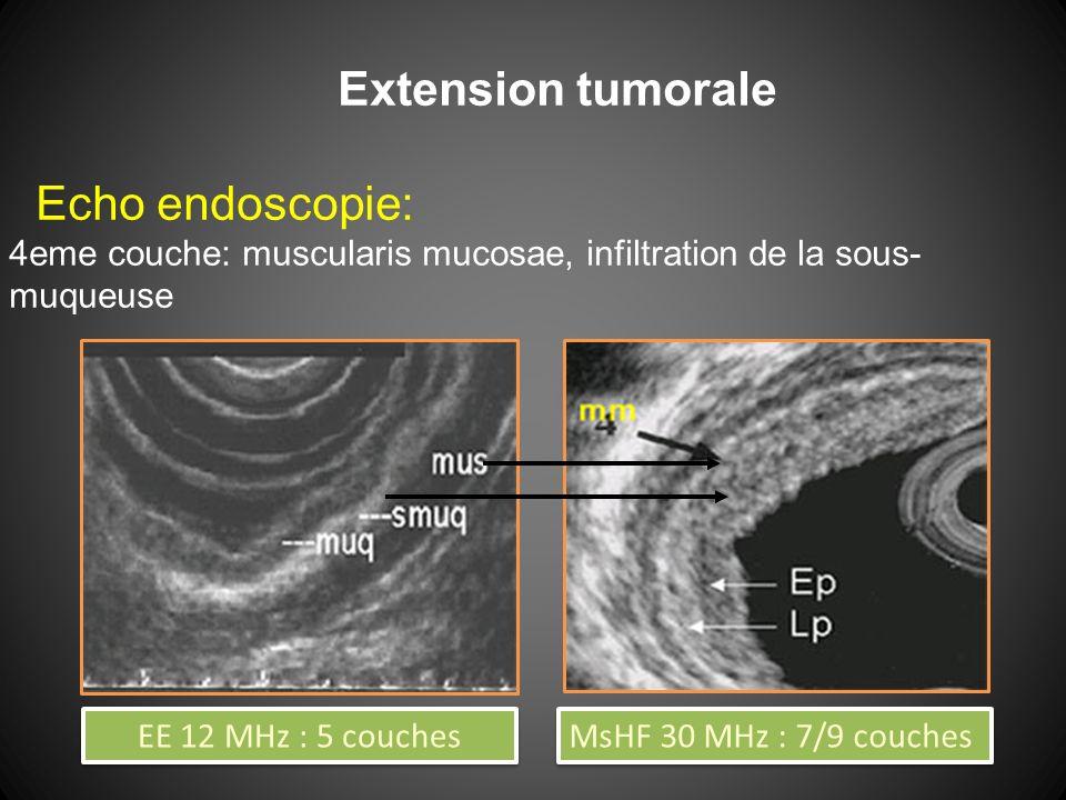 Extension tumorale Echo endoscopie: