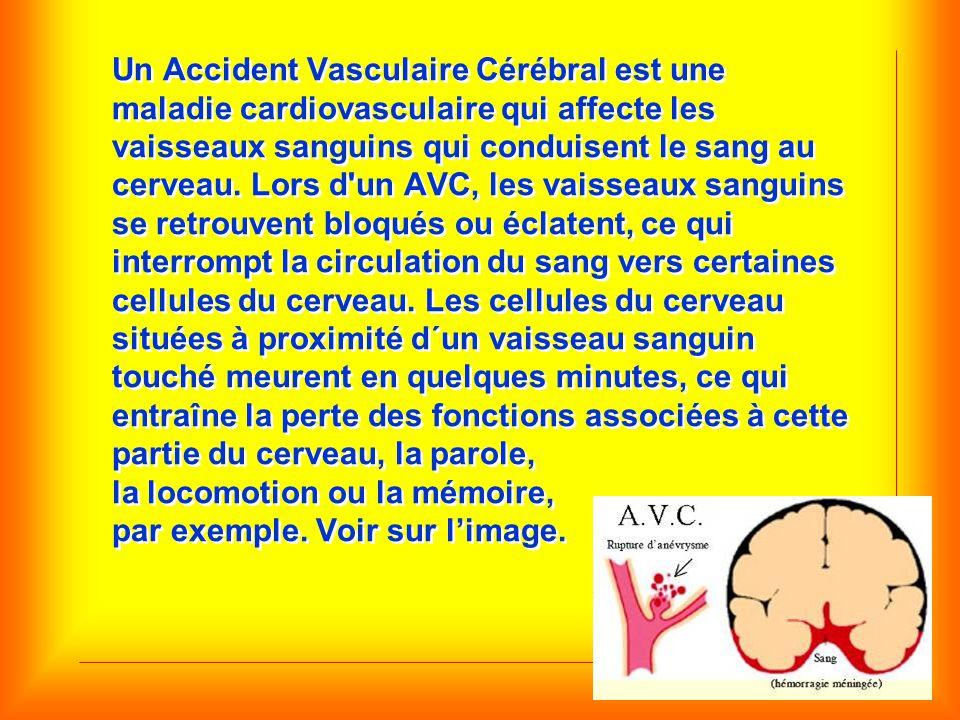 Un Accident Vasculaire Cérébral est une maladie cardiovasculaire qui affecte les vaisseaux sanguins qui conduisent le sang au cerveau.