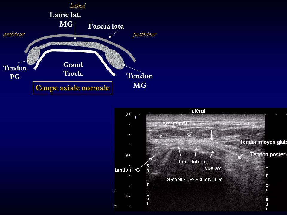 Lame lat. Fascia lata MG Coupe axiale normale latéral Tendon PG Grand