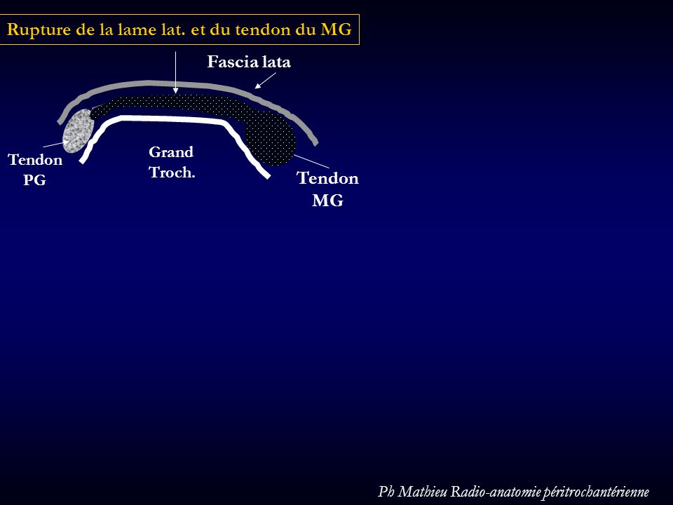 Rupture de la lame lat. et du tendon du MG