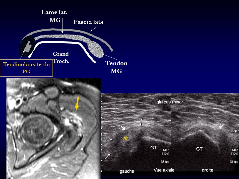 Lame lat. MG Fascia lata Grand Troch. Tendon MG Tendinobursite du PG *