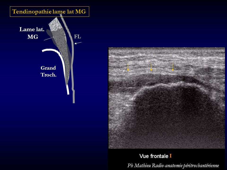 Tendinopathie lame lat MG