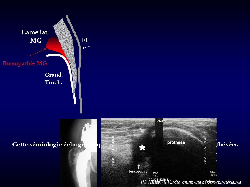 Grand Troch. FL. Lame lat. MG. Bursopathie MG. Cette sémiologie échographique vaut également pour les hanches prothésées.