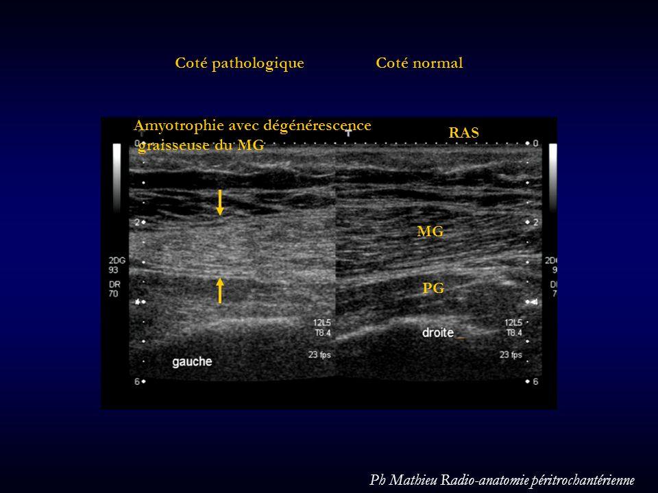 Coté pathologique Coté normal. Amyotrophie avec dégénérescence. graisseuse du MG. RAS. MG. PG.