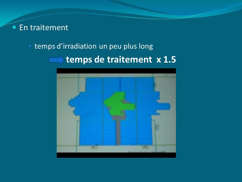 temps de traitement x 1.5 En traitement