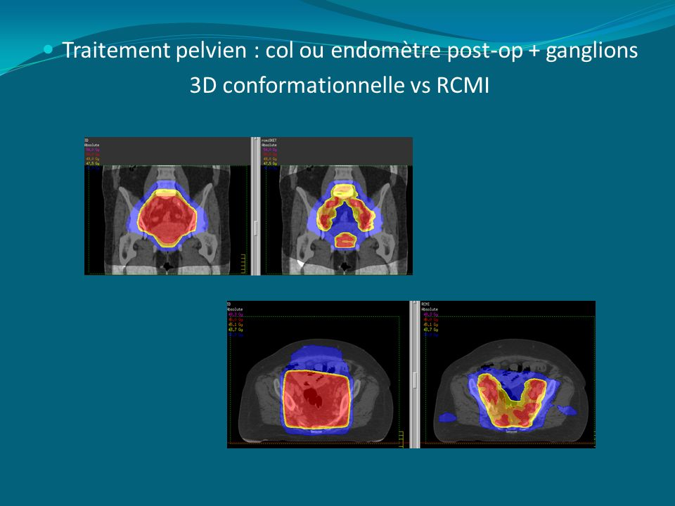Traitement pelvien : col ou endomètre post-op + ganglions