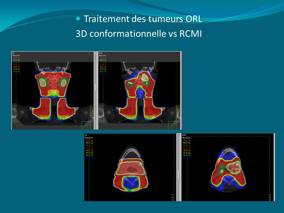 Traitement des tumeurs ORL 3D conformationnelle vs RCMI