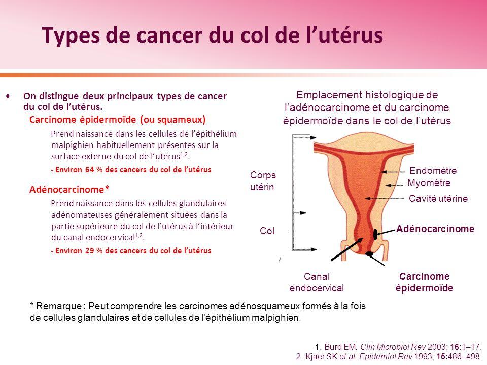 Types de cancer du col de l'utérus