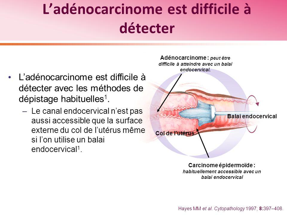 L'adénocarcinome est difficile à détecter