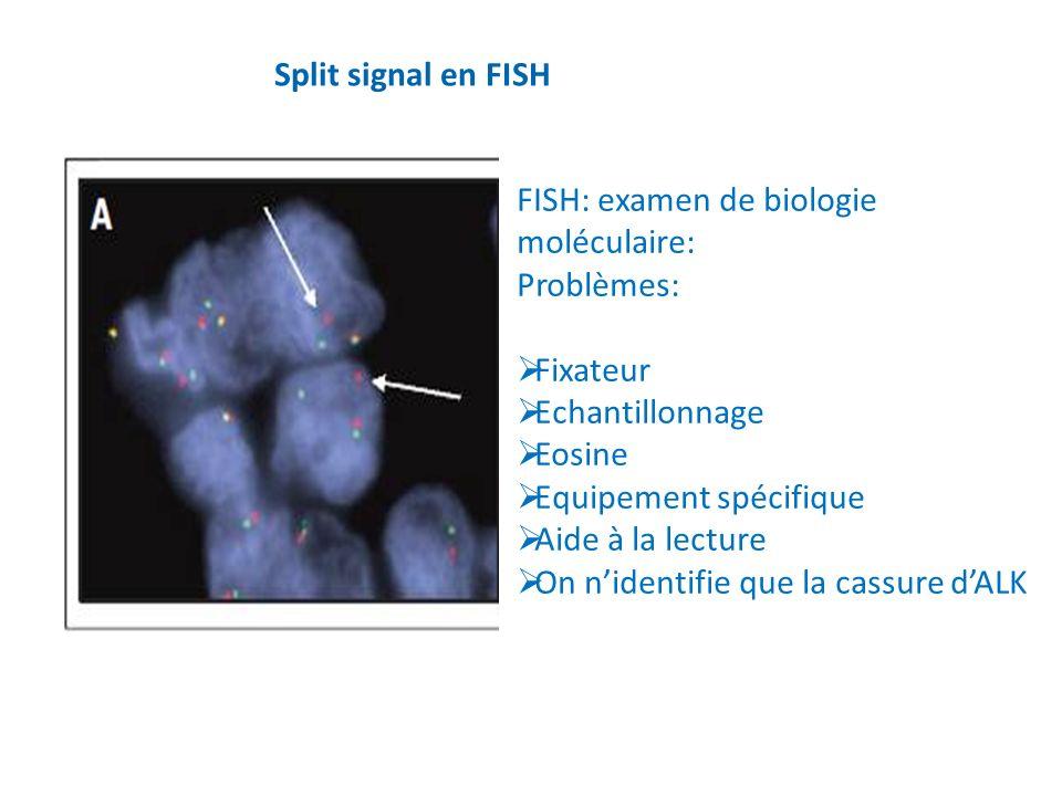 Split signal en FISH FISH: examen de biologie moléculaire: Problèmes: Fixateur. Echantillonnage.