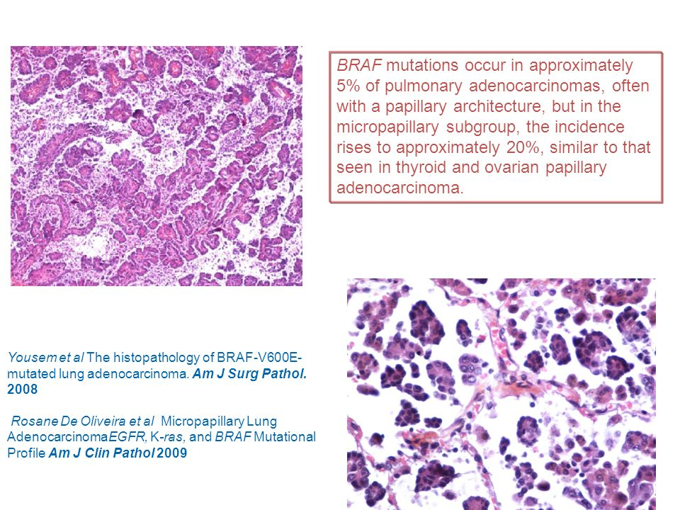 BRAF mutations occur in approximately 5% of pulmonary adenocarcinomas, often with a papillary architecture, but in the micropapillary subgroup, the incidence rises to approximately 20%, similar to that seen in thyroid and ovarian papillary adenocarcinoma.