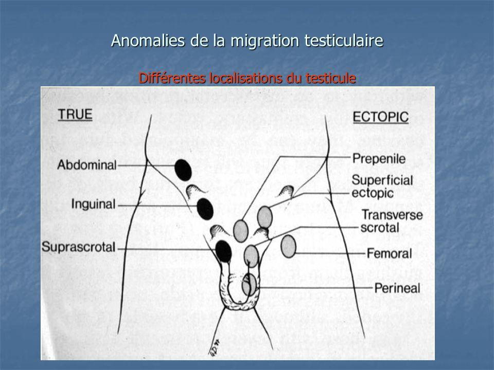 Anomalies de la migration testiculaire Différentes localisations du testicule