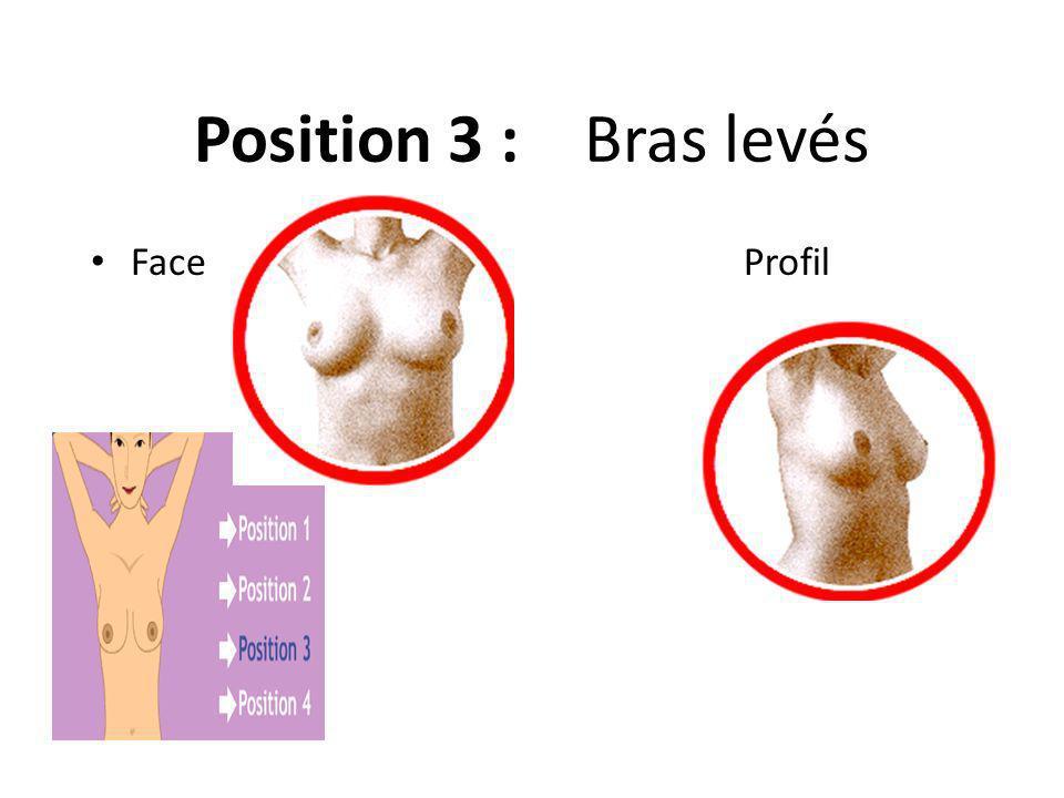 Position 3 : Bras levés Face Profil