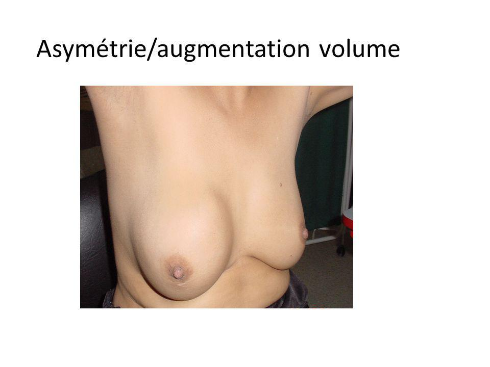 Asymétrie/augmentation volume