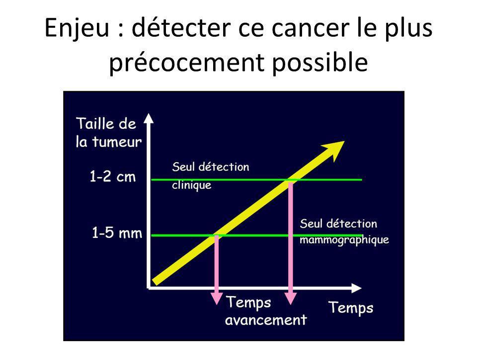 Enjeu : détecter ce cancer le plus précocement possible