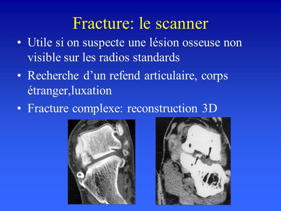 Fracture: le scanner Utile si on suspecte une lésion osseuse non visible sur les radios standards.