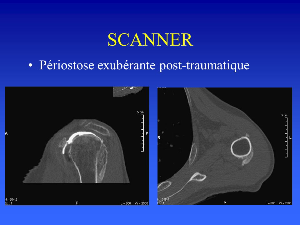 SCANNER Périostose exubérante post-traumatique