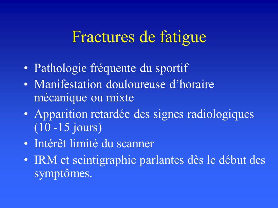 Fractures de fatigue Pathologie fréquente du sportif