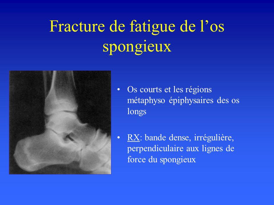 Fracture de fatigue de l'os spongieux