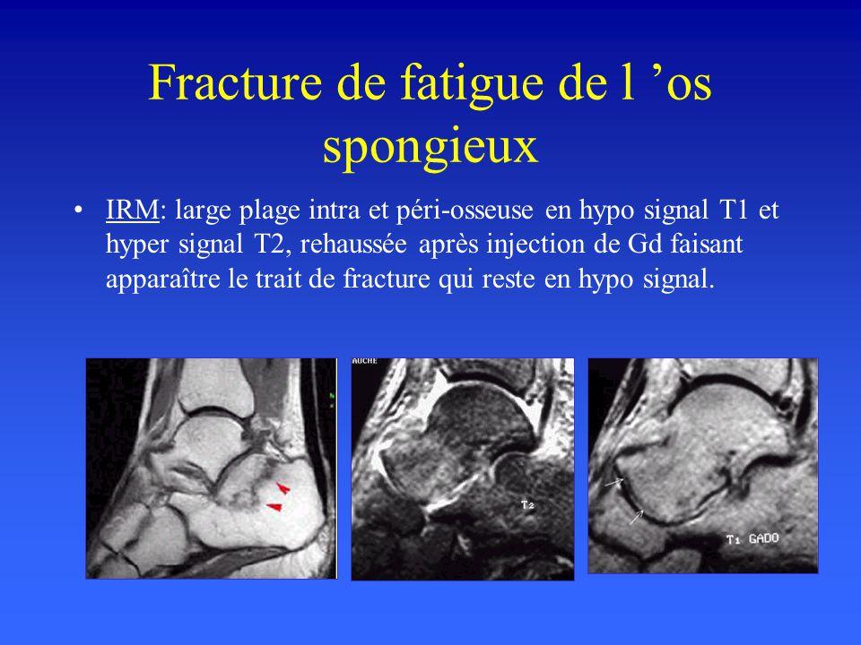 Fracture de fatigue de l 'os spongieux
