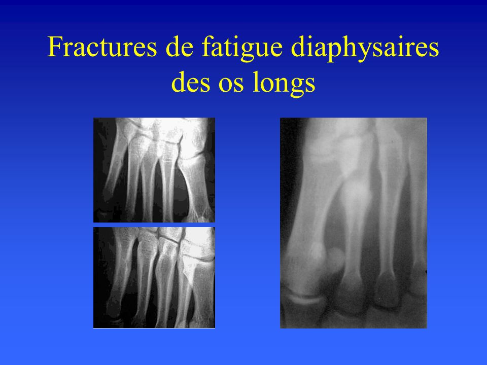 Fractures de fatigue diaphysaires des os longs