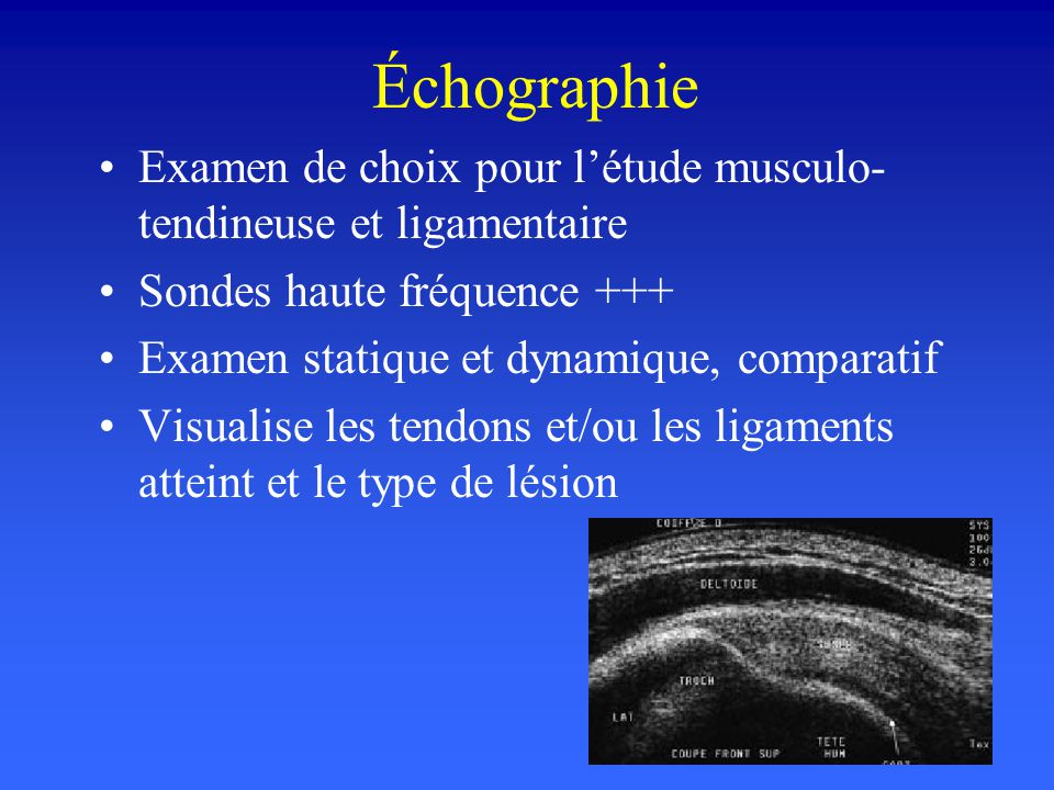 Échographie Examen de choix pour l'étude musculo-tendineuse et ligamentaire. Sondes haute fréquence +++