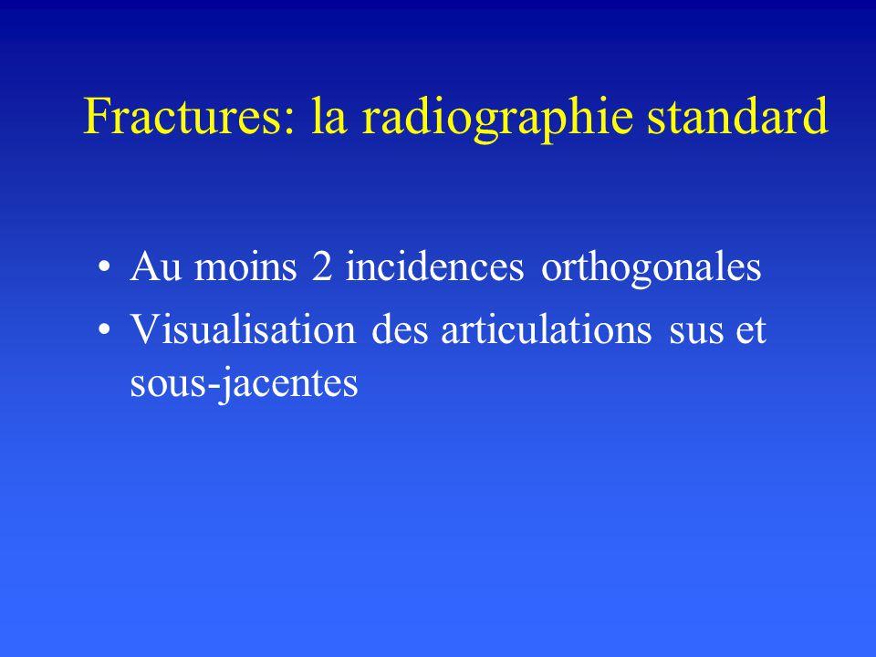 Fractures: la radiographie standard