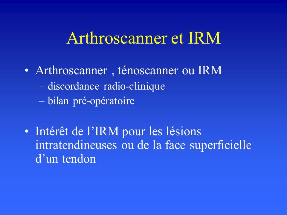 Arthroscanner et IRM Arthroscanner , ténoscanner ou IRM
