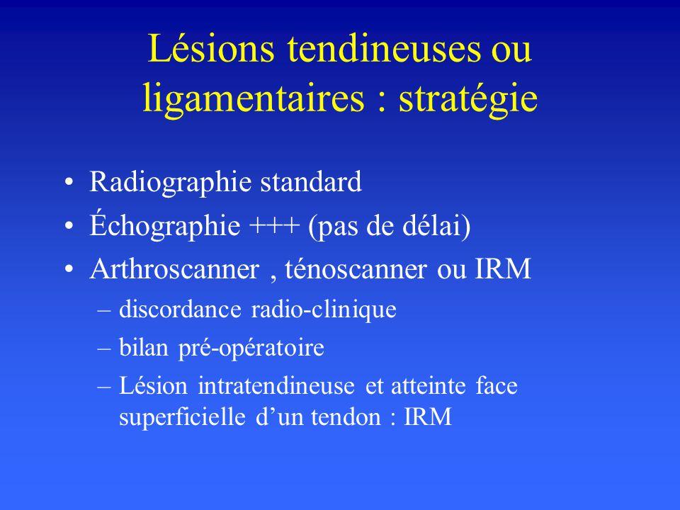 Lésions tendineuses ou ligamentaires : stratégie