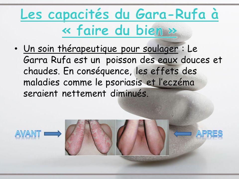 Les capacités du Gara-Rufa à « faire du bien »