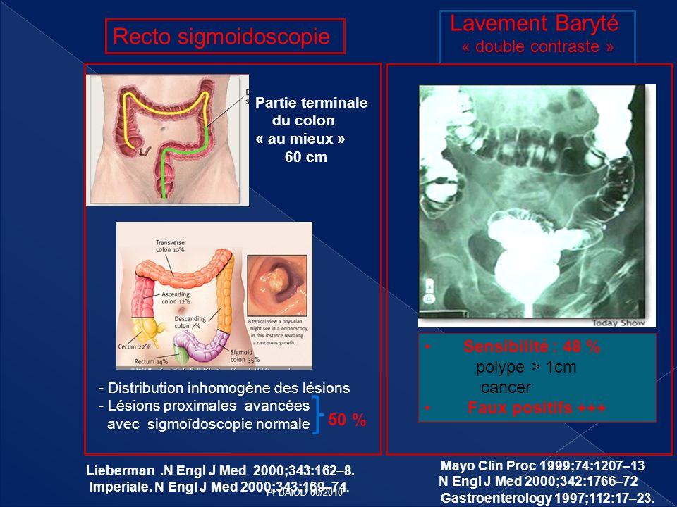 Lavement Baryté Recto sigmoidoscopie « double contraste »